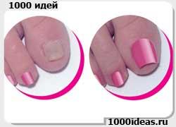 Бывают ли накладные ногти на пальцы ног