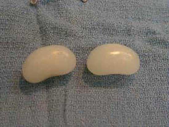 Имплантаты для собак изобрел американец Грэг Миллер (Gregg Miller) из штата Миссури.